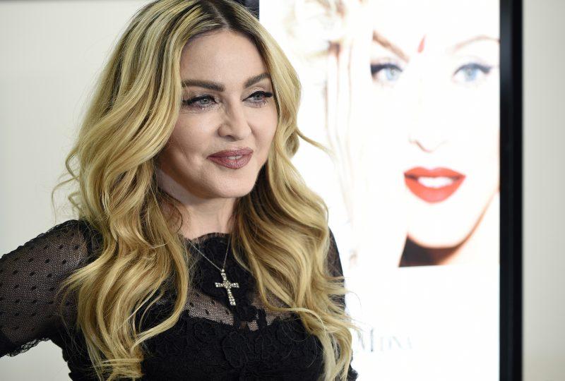 Madonnan fanit huolissaan: plastiikkakirurgi epäilee useita kasvojenkohotuksia ja muita toimenpiteitä